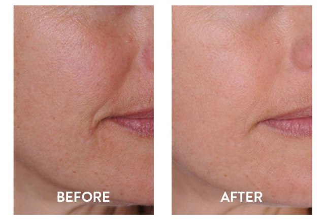 Before-After-Retinol-Serum-Face